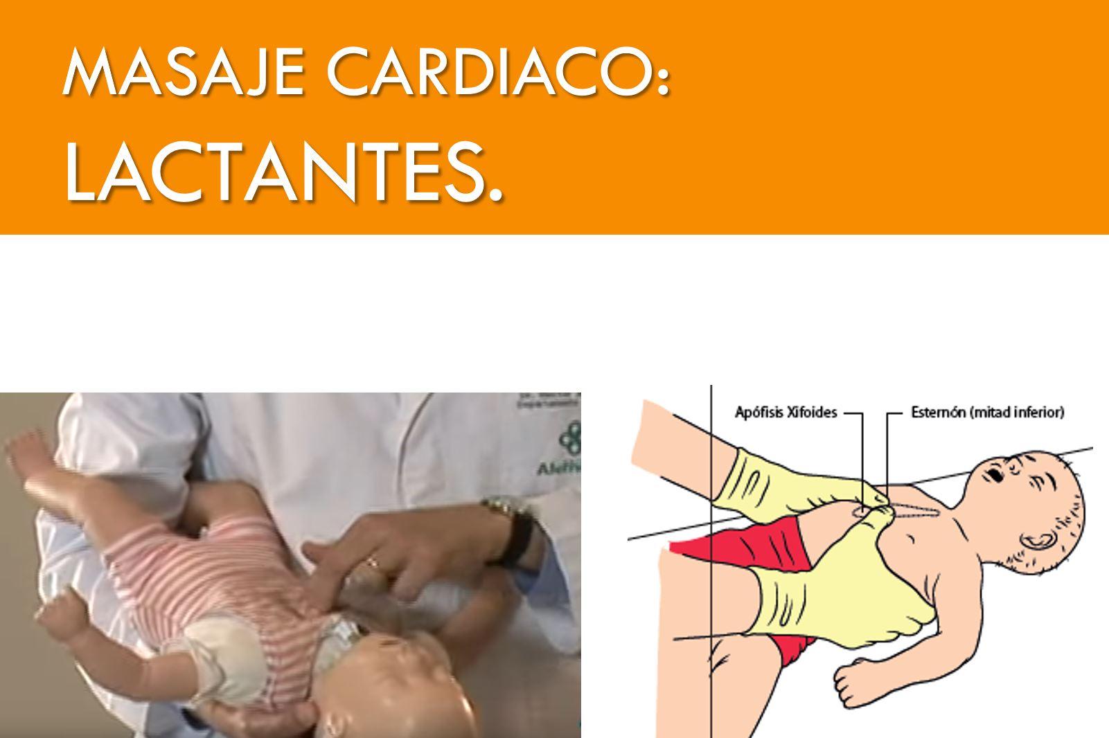MASAJE CARDIACO LACTANTES